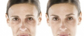 Antiaging Treatments Essex