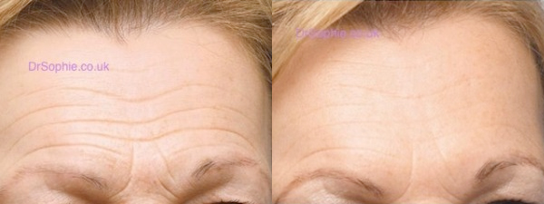 How to remove wrinkles from your forehead