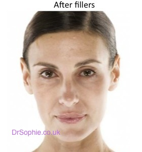 After Fillers copy