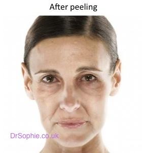 After peels copy