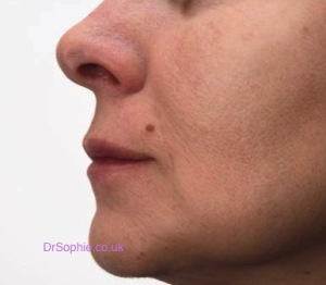 Treating Square Jawlines Essex