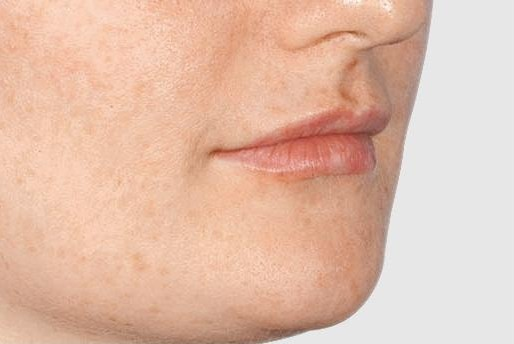 Lip Augmentation London