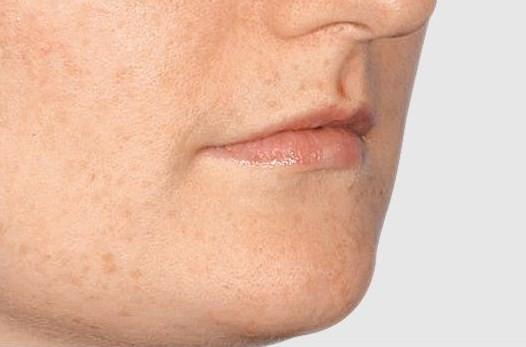 Lip enhancement - Before