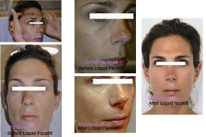 Liquid Facelift London