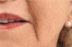 Reduce Nose to Mouth Lines