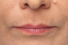 Lines Around Mouth Treatment Essex