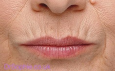 How to Get Rid of Lines Around Mouth