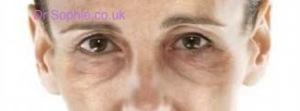 Lines Under Eyes
