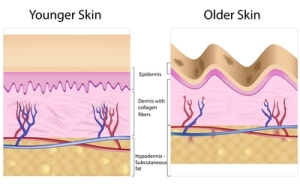 how anti wrinkle treatments work